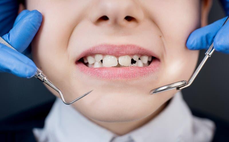 Żeński dentysta egzamininuje zęby cierpliwy dziecko obraz stock