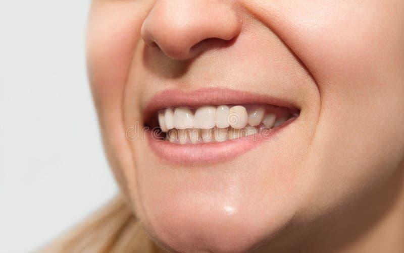 Żeński uśmiech z niskieju jakości zębu korony płaskim kolorem, zły kształt zdjęcia stock