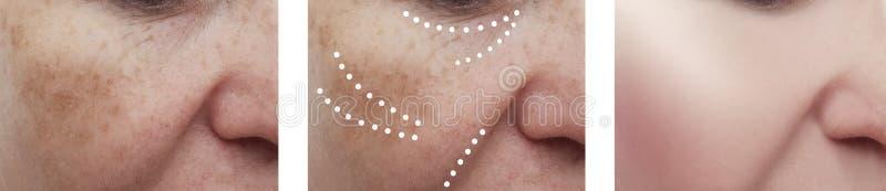 Żeńskich twarzowych zmarszczeń cierpliwy odzyskiwanie przed i po skutka kolażu procedur dermatologią obrazy royalty free