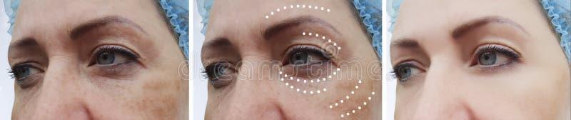 Żeńskich twarzowych zmarszczeń korekcji cierpliwy odzyskiwanie przed i po skutka kolażu procedurami zdjęcia royalty free
