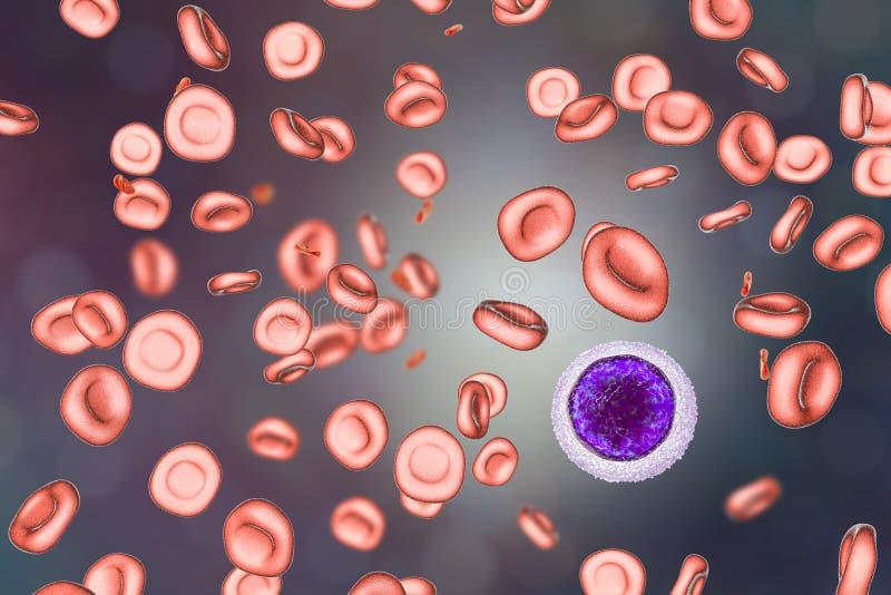 Żelaznego niedostatku anemia fotografia stock