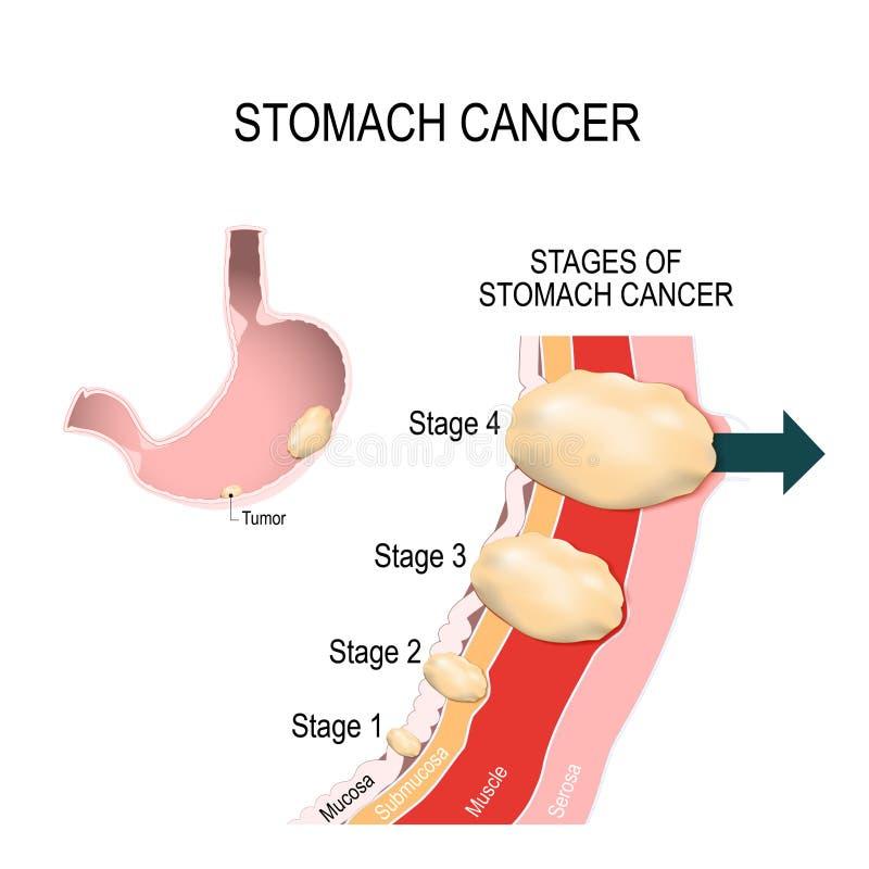 Żołądka nowotwór wektorowa ilustracja dla medycznego use ilustracji
