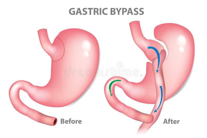 Żołądkowa obwodnicy operacja ilustracja wektor