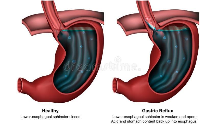 Żołądkowa reflux 3d medyczna ilustracja z angielskim opisem ilustracji