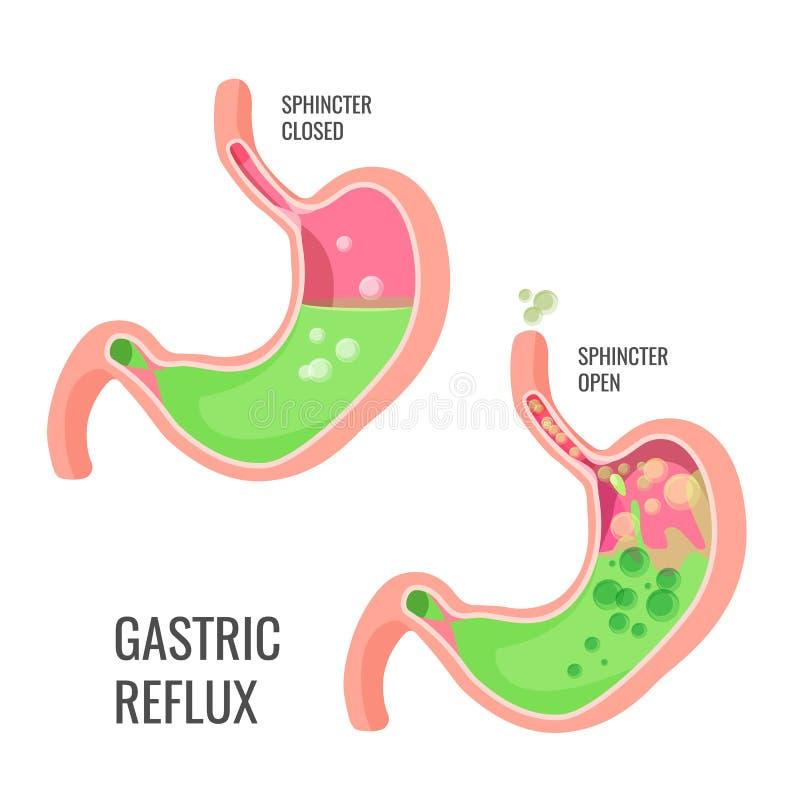 Żołądkowego reflux promo medyczny plakat z ludzkim organem royalty ilustracja