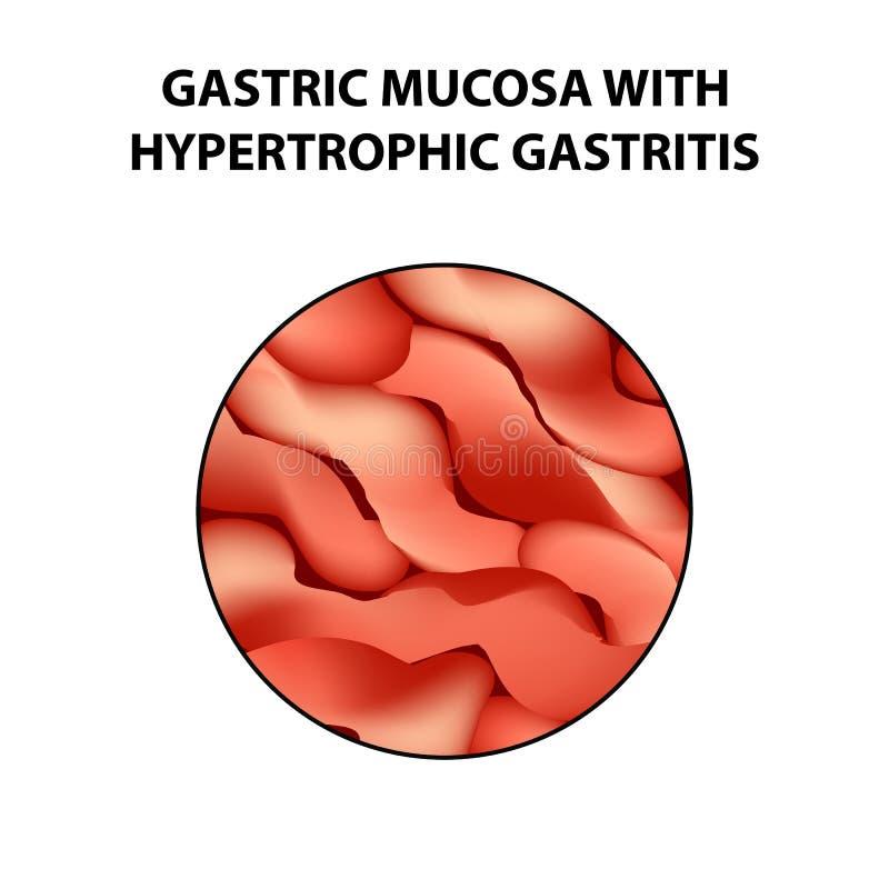 Żołądkowy mucosa z hipertroficznym gastritis Infographics Wektorowa ilustracja na odosobnionym tle ilustracji