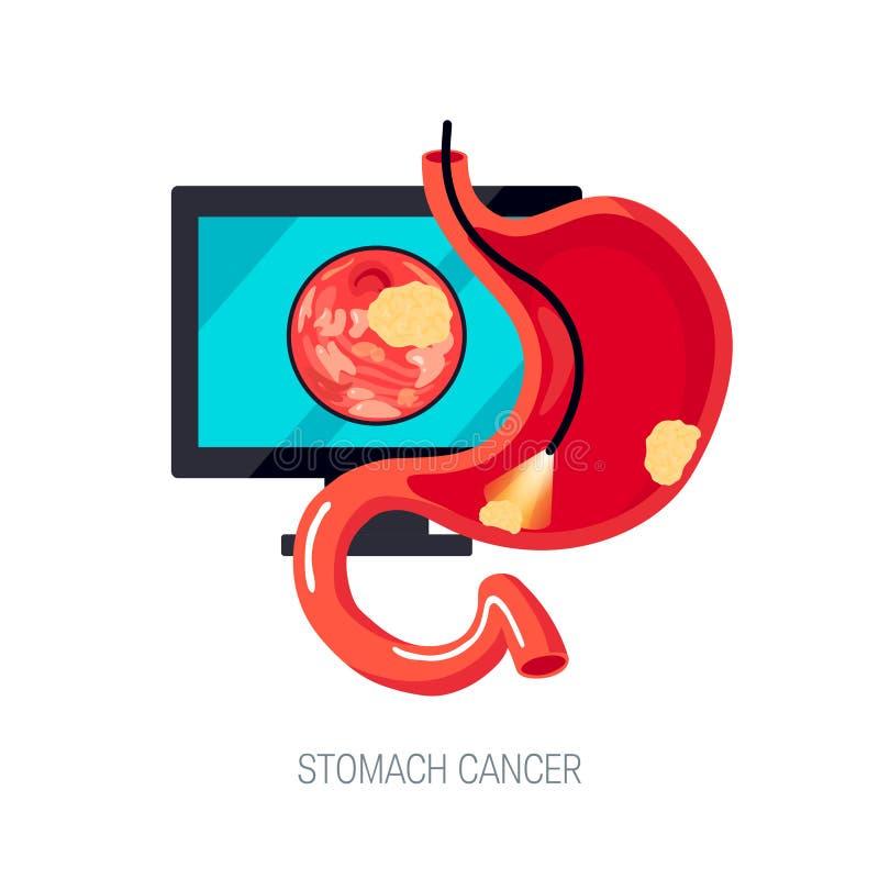 Żołądkowy nowotworu pojęcie w mieszkanie stylu, ikona royalty ilustracja