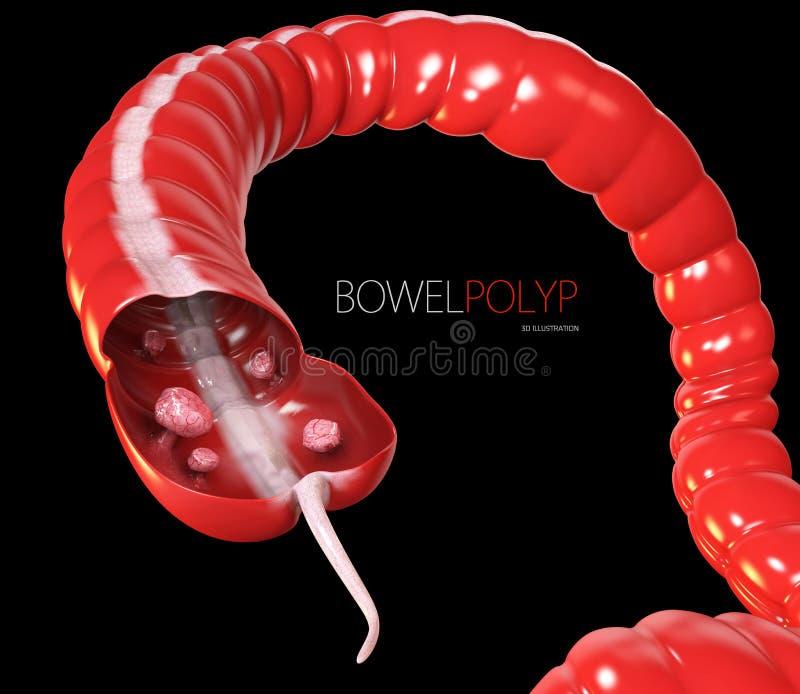 Άνω και κάτω τελεία polyps τρισδιάστατη απεικόνιση Polyp στο έντερο μαύρα διανυσματική απεικόνιση