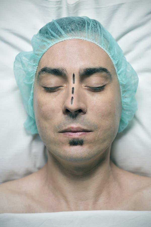 Άτομο για να έχει περίπου rhinoplasty στοκ φωτογραφίες