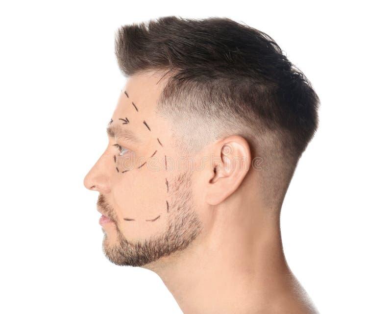 Άτομο με τα σημάδια στο πρόσωπο για τη λειτουργία αισθητικής χειρουργικής στοκ φωτογραφία με δικαίωμα ελεύθερης χρήσης