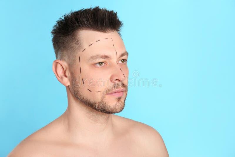 Άτομο με τα σημάδια στο πρόσωπο για τη λειτουργία αισθητικής χειρουργικής στο μπλε κλίμα στοκ φωτογραφία