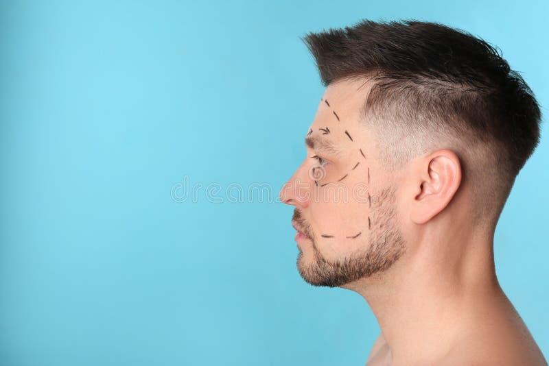 Άτομο με τα σημάδια στο πρόσωπο για τη λειτουργία αισθητικής χειρουργικής στο μπλε κλίμα στοκ φωτογραφίες με δικαίωμα ελεύθερης χρήσης