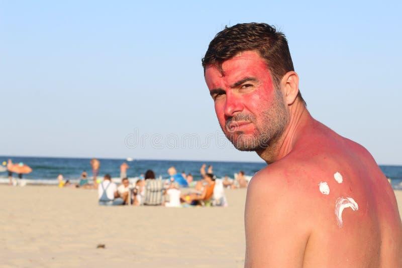Άτομο που υφίσταται τις συνέπειες πάρα πολλής UV ελαφριάς έκθεσης στοκ εικόνες