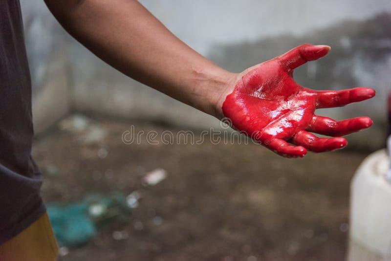 Άτομο χεριών που καλύπτεται στο πολύ αιματηρό κόκκινο μετά από το ατύχημα στοκ εικόνες