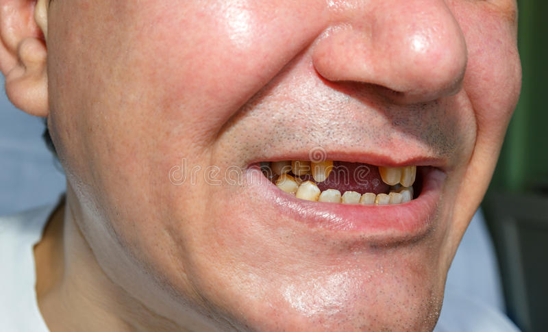 Άτομο χωρίς και ξεφλουδισμένα δόντια στοκ φωτογραφίες με δικαίωμα ελεύθερης χρήσης