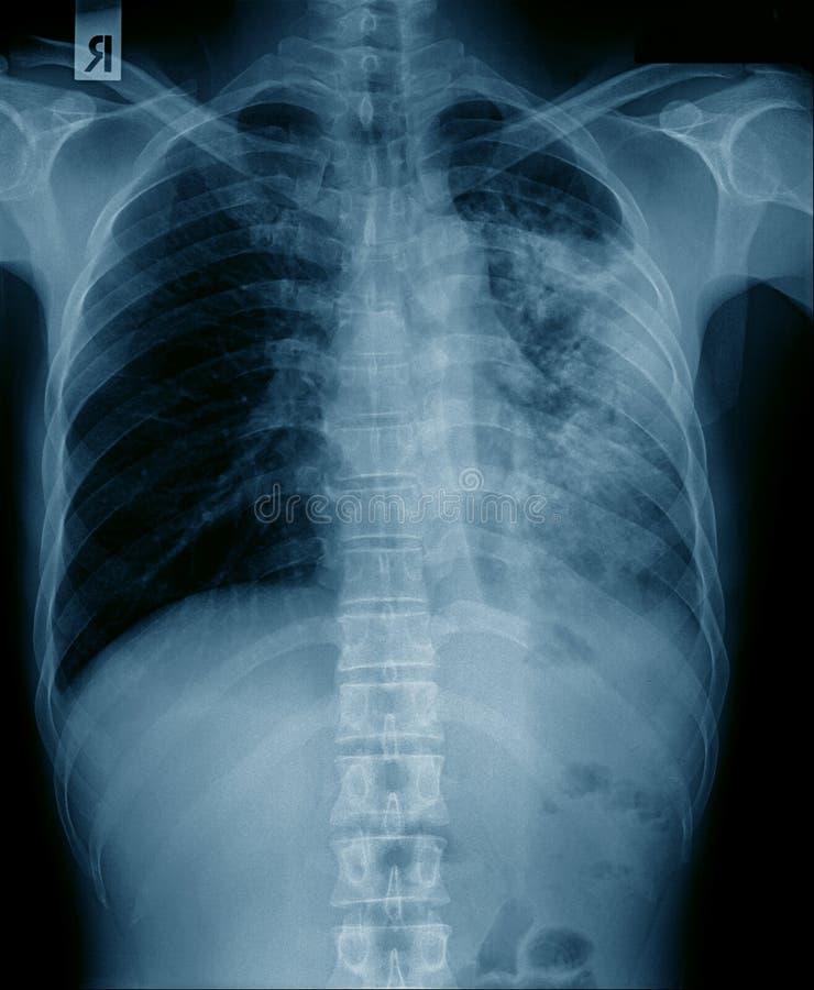 Έκκριση στον πνεύμονα στοκ φωτογραφίες με δικαίωμα ελεύθερης χρήσης