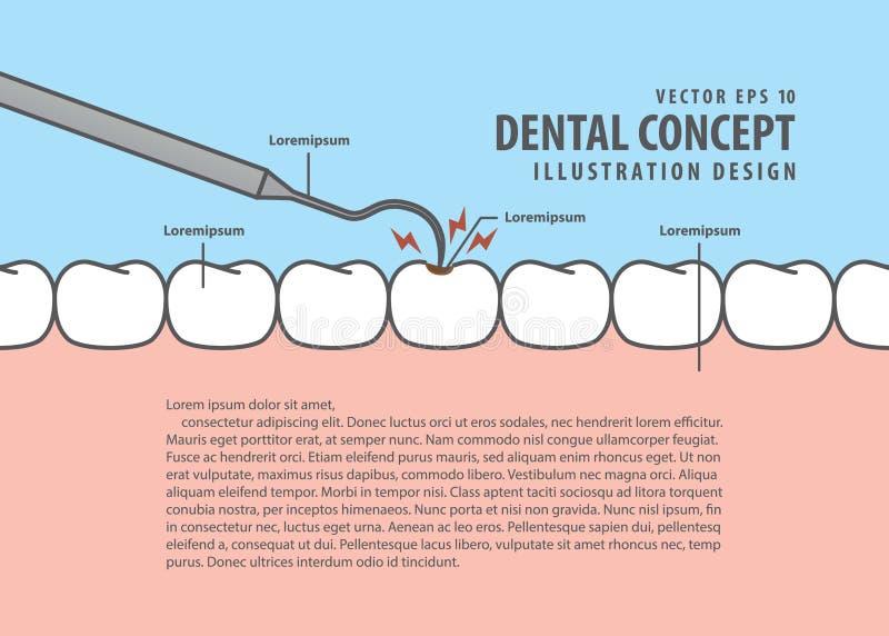 Έλεγχος δοντιών αποσύνθεσης σχεδιαγράμματος επάνω στο ύφος κινούμενων σχεδίων τερηδόνων για τις πληροφορίες ή το β απεικόνιση αποθεμάτων