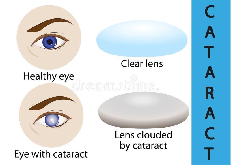 Ένας καταρράκτης είναι ένας καλύπτοντας κρυστάλλινος φακός μέσα στο μάτι διανυσματική απεικόνιση