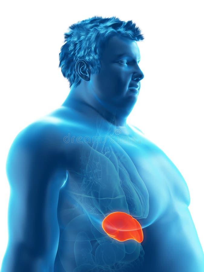 Ένας παχύσαρκος επανδρώνει τη σπλήνα απεικόνιση αποθεμάτων