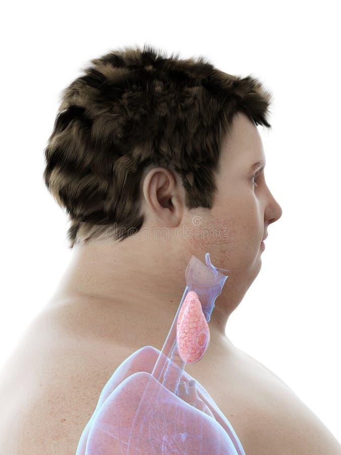 Ένας παχύσαρκος επανδρώνει το θυροειδή αδένα ελεύθερη απεικόνιση δικαιώματος