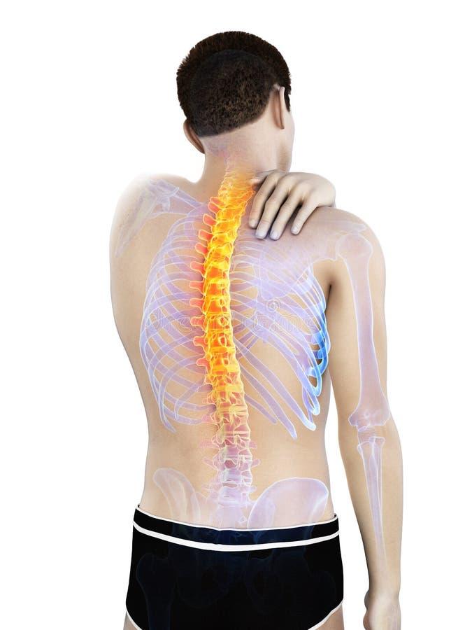 Ένα άτομο που έχει έναν πόνο στην πλάτη ελεύθερη απεικόνιση δικαιώματος