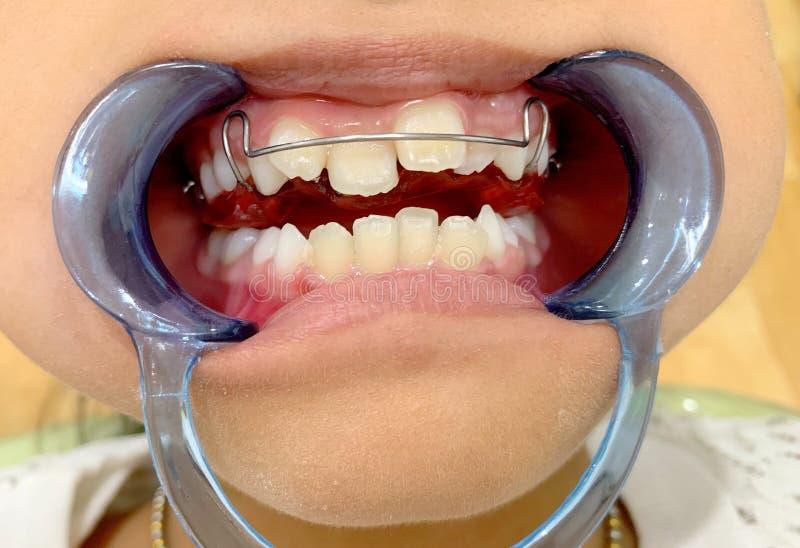 Ένα ασιατικό κορίτσι ανοίγει το στόμα της με το στοματικό φίμωμα και παρουσιάζει μετακινούμενη συσκευή με τα προηγούμενα στηρίγμα στοκ φωτογραφία