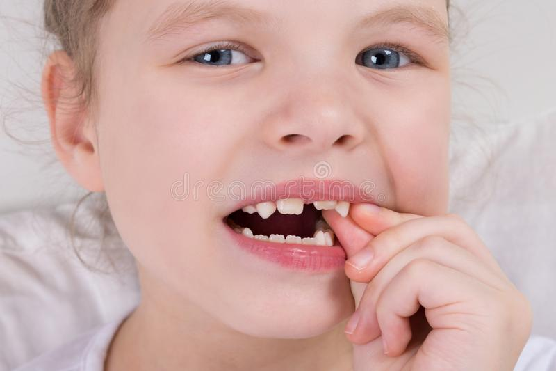 Ένα μικρό κορίτσι ταλαντεύεται ένα δόντι γάλακτος, με δύο δάχτυλα στοκ φωτογραφία