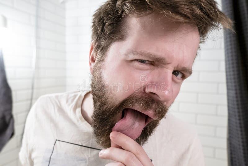 Ένα νέο, γενειοφόρο άτομο που ανησυχούν εξετάζει τη γλώσσα του στην αντανάκλαση ενός καθρέφτη στο λουτρό στοκ εικόνα με δικαίωμα ελεύθερης χρήσης