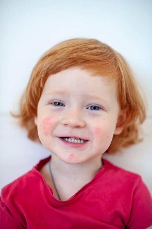 Ένα παιδί με τα σημάδια μιας αλλεργίας στο πρόσωπο στοκ εικόνα με δικαίωμα ελεύθερης χρήσης