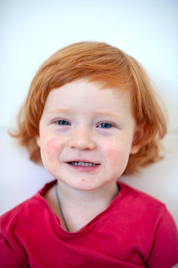 Ένα παιδί με τα σημάδια μιας αλλεργίας στο πρόσωπο στοκ φωτογραφία με δικαίωμα ελεύθερης χρήσης