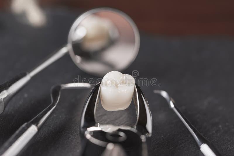 Έννοια εξαγωγής δοντιών στοκ φωτογραφίες