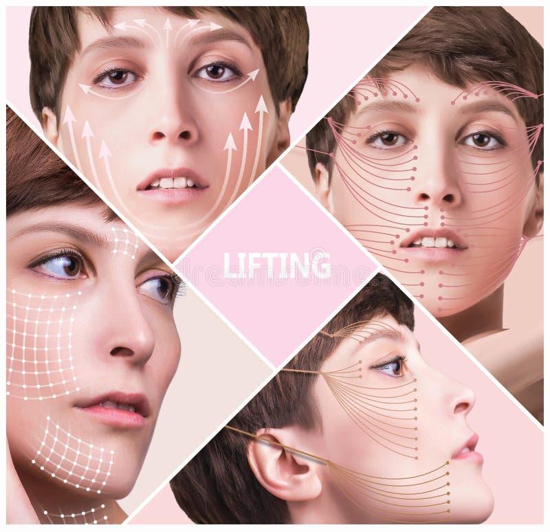 Έννοια πλαστικής χειρουργικής δερμάτων Πρόσωπο γυναικών με τα σημάδια και τα βέλη στοκ εικόνα