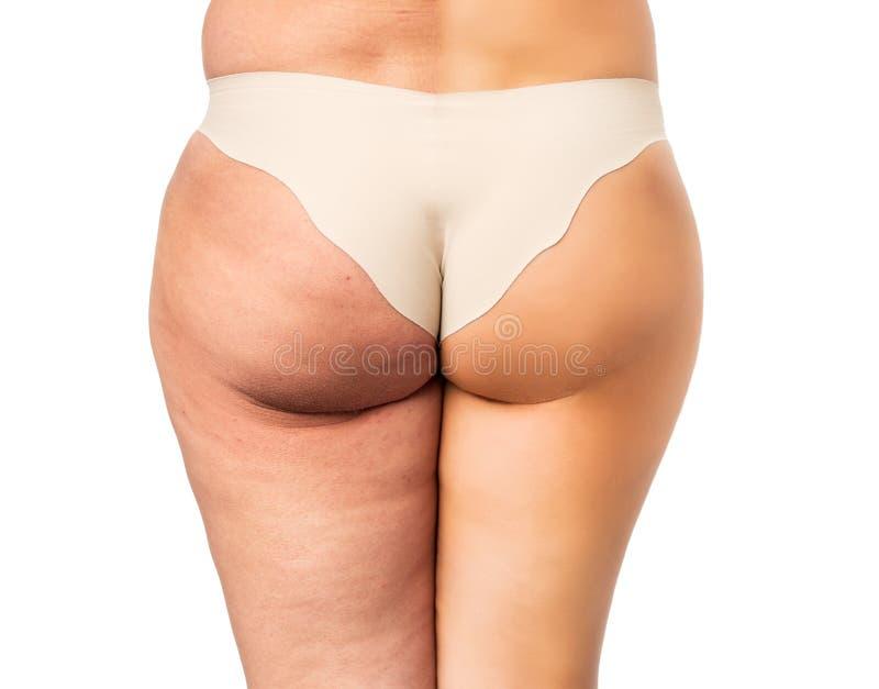 Έννοια προβλήματος Cellulite, πριν και μετά στοκ φωτογραφία