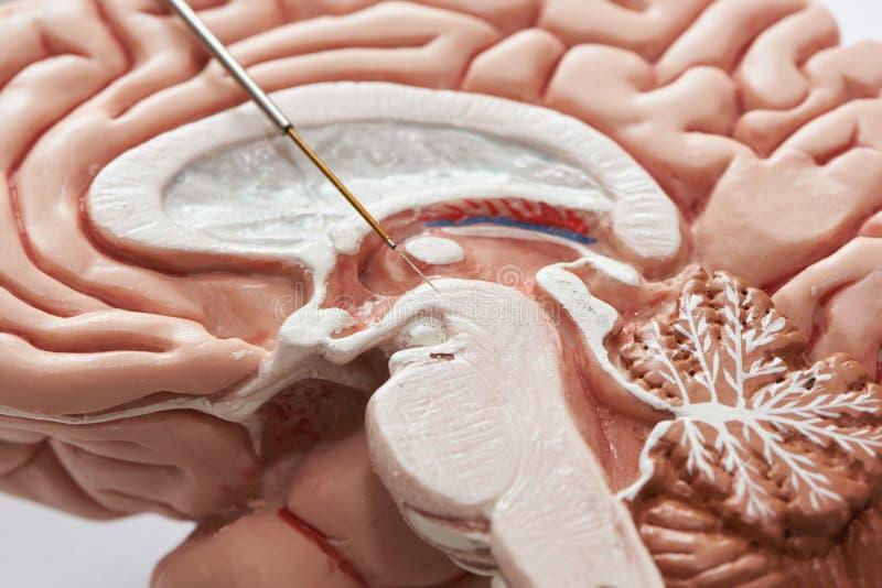 Έννοια της καταγραφής εγκεφάλου στο subthalamic πυρήνα για Parkinson τη χειρουργική επέμβαση ασθενειών στοκ εικόνες