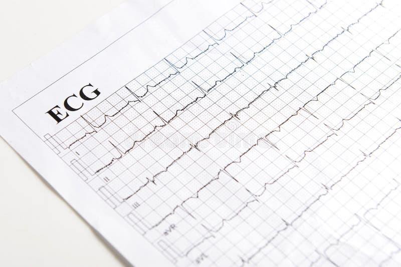 Έντυπο ECG στοκ εικόνες με δικαίωμα ελεύθερης χρήσης