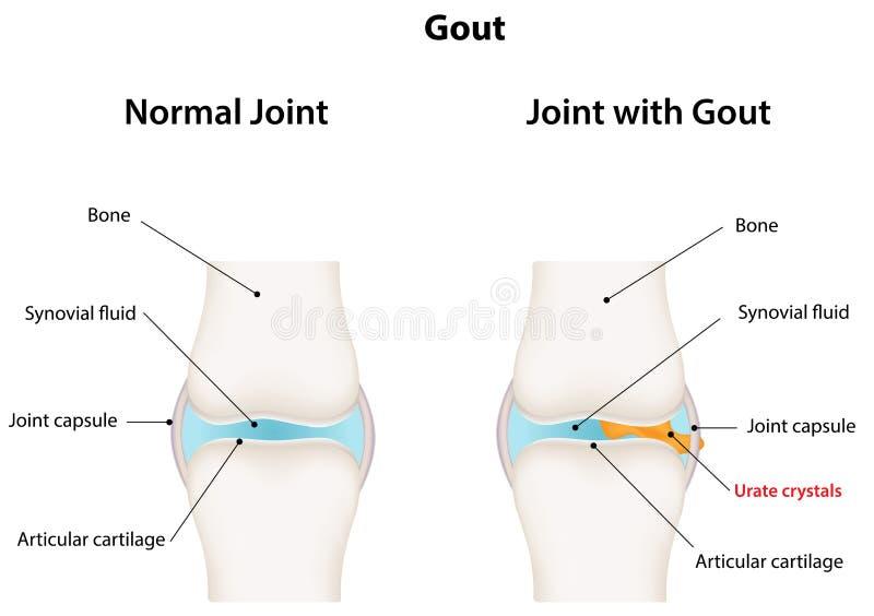 Ένωση με Gout διανυσματική απεικόνιση