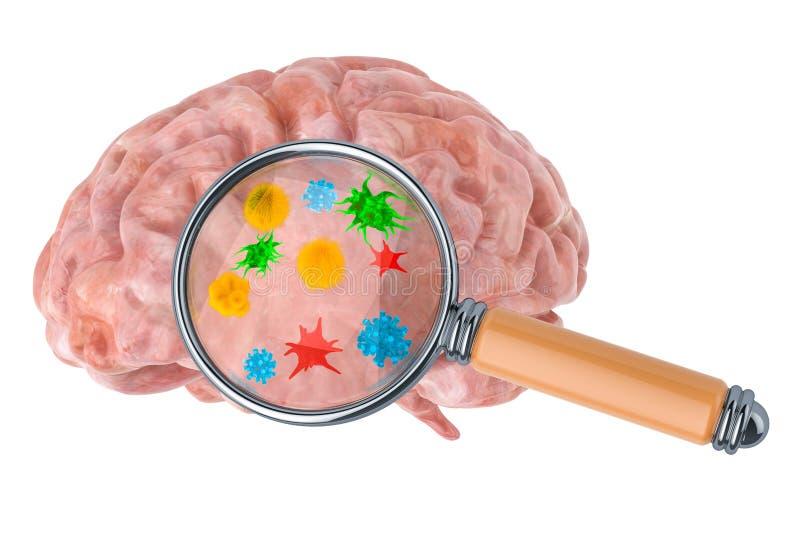 Έρευνα και διάγνωση της έννοιας ασθενειών εγκεφάλου Ανθρώπινος εγκέφαλος με τους ιούς και τα bacterias κάτω από την ενίσχυση - γυ διανυσματική απεικόνιση