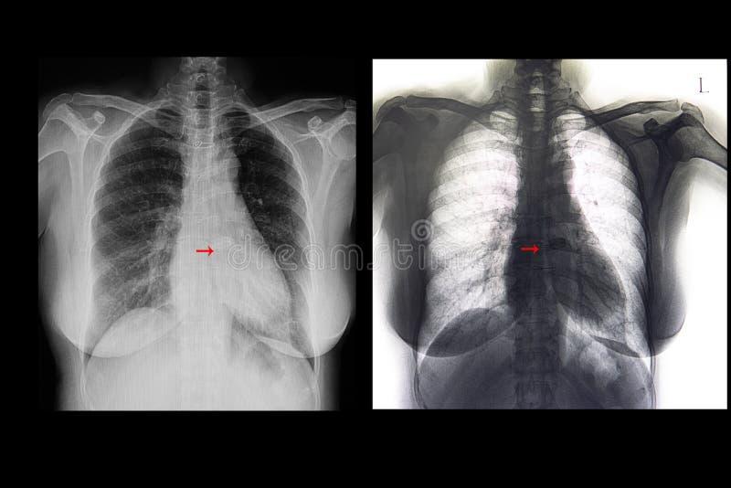 ήπιος cardiomegaly και αντικατάσταση βαλβίδων στοκ εικόνα