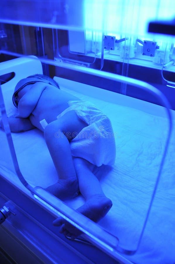 ίκτερος νεογέννητος στοκ εικόνες