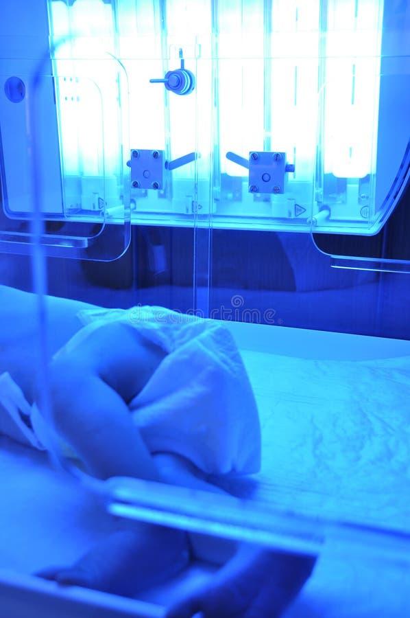 ίκτερος νεογέννητος στοκ φωτογραφία με δικαίωμα ελεύθερης χρήσης