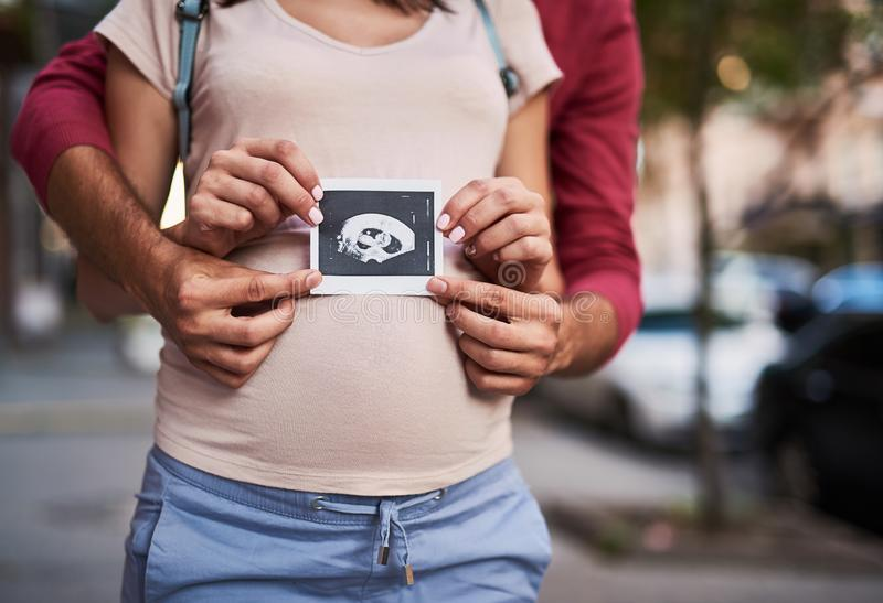 Αγαπώντας γονείς που κρατούν τη φωτογραφία υπερήχου του παιδιού τους στοκ εικόνα με δικαίωμα ελεύθερης χρήσης
