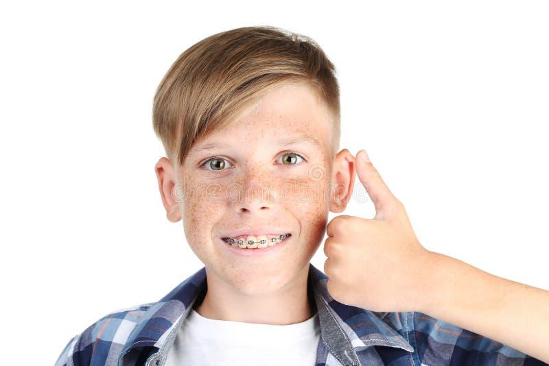 Αγόρι με τα οδοντικά στηρίγματα στοκ εικόνα με δικαίωμα ελεύθερης χρήσης