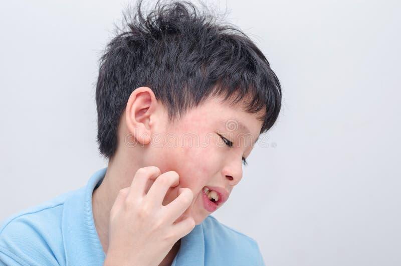 Αγόρι που γρατσουνίζει το πρόσωπο αλλεργίας του στοκ φωτογραφίες με δικαίωμα ελεύθερης χρήσης