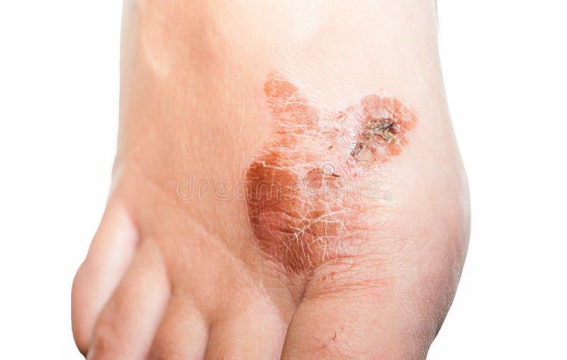 Ακραία κακή βακτηριακή μυκητιακή μόλυνση δερμάτων ποδιών με στενό ζημίας επάνω μερικώς που απομονώνεται στο άσπρο υπόβαθρο κοντά  στοκ φωτογραφίες
