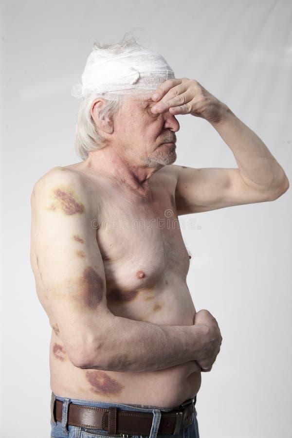 Ακρωτηριασμένο ληστές άτομο στοκ φωτογραφία