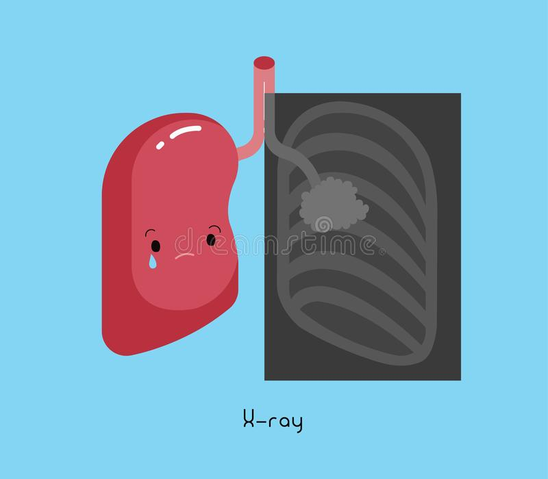 Ακτίνα X του ανθρώπινου καρκίνου του πνεύμονα, κινούμενα σχέδια ελεύθερη απεικόνιση δικαιώματος