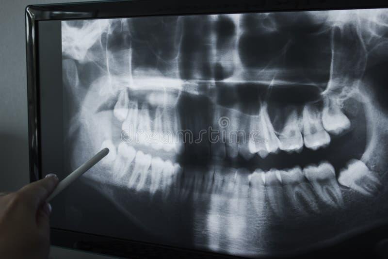 Ακτίνα X του ανθρώπινου σαγονιού στοκ εικόνες