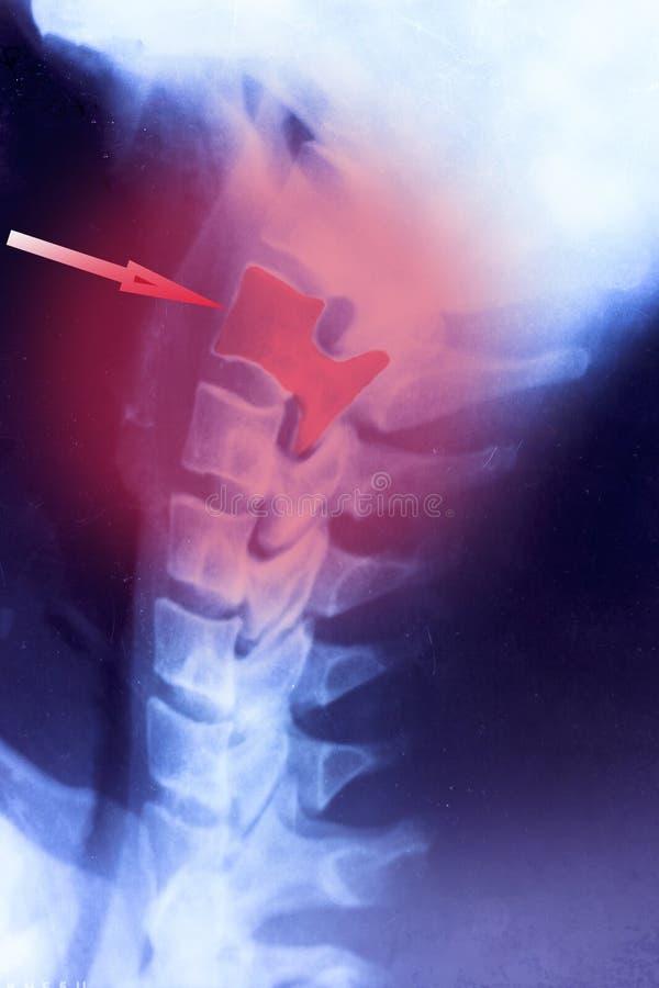 Ακτίνα X του κρανίου αναδρομικό πλάνο ενδεχομένως αυχενικός πόνος διάσεισης στοκ φωτογραφίες