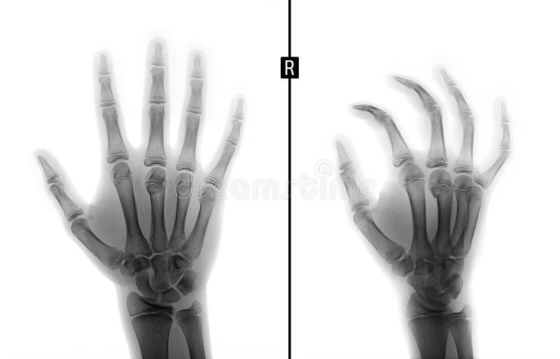 Ακτίνα X του χεριού Σπάσιμο του 3$ου μετακάρπιου κόκκαλου το παιδί αρνητικός στοκ φωτογραφία με δικαίωμα ελεύθερης χρήσης