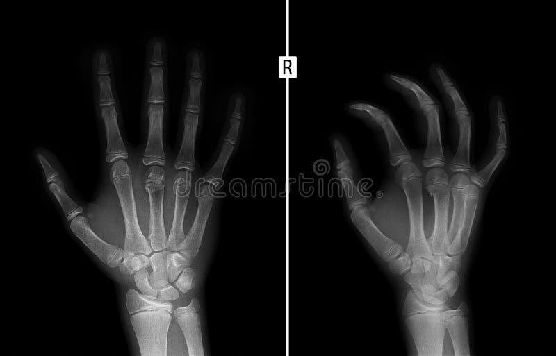 Ακτίνα X του χεριού Σπάσιμο του 3$ου μετακάρπιου κόκκαλου το παιδί στοκ φωτογραφίες